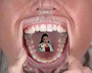 Apribocca odontoiatrico tortura Silvana Calabrese Blog