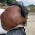 Lelaki Derita Tumor Seberat 14.9kg Sejak 47 Tahun Lalu, Pakar Bedah Ambil Masa 10 Jam Untuk Buang