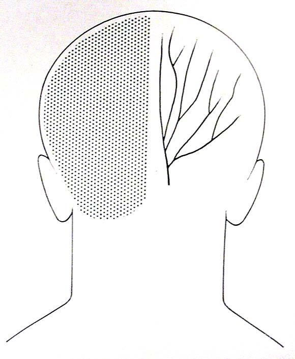 punzadas en la cabeza lado izquierdo atras de la oreja