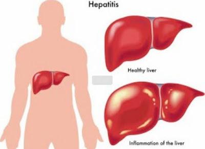 Asuhan Keperawatan Hepatitis
