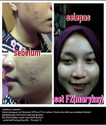 mary Kay testimoni Botanical effect