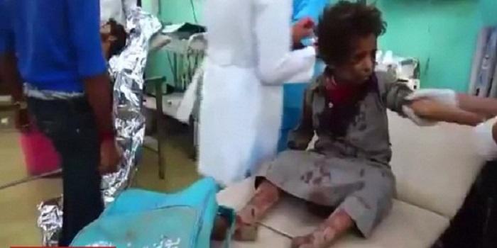 கொடூர விமான தாக்குதலில் குழந்தைகள் உட்பட 43 பேர் பரிதாபமாக பலி! 50 மேற்பட்டோர் படுகாயம்