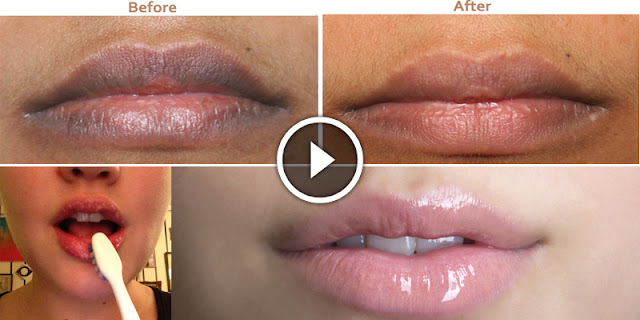 Home DIY - How To Lighten Darker Lips And Get Pink Lips!