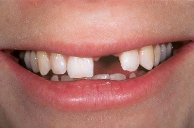 Gãy một răng cửa trồng lại bằng phương pháp nào tốt nhất?