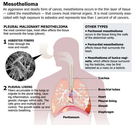 Mesothelioma Cancer - Chemotherapy, Radiation Therapy