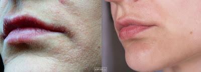 O tym, jak dzięki BIODERMIE wyszłam z twarzą - reakcja alergiczna i szybka kuracja