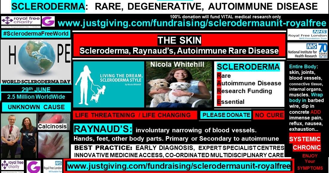 Raynauds Scleroderma Global Patients: The Skin, Scleroderma