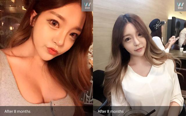짱이뻐! - Gangnam Breast Plastic Surgery Review: Now I Love My Face Shape