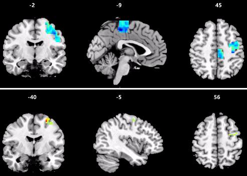図:鍼刺激前後の脳の機能的接続性変化