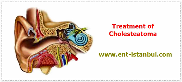 Cholesteatoma Treatment