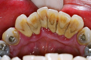 Cara Ampuh Menghilangkan Karang Gigi Dan membersihkannya Dengan Cara Scaling