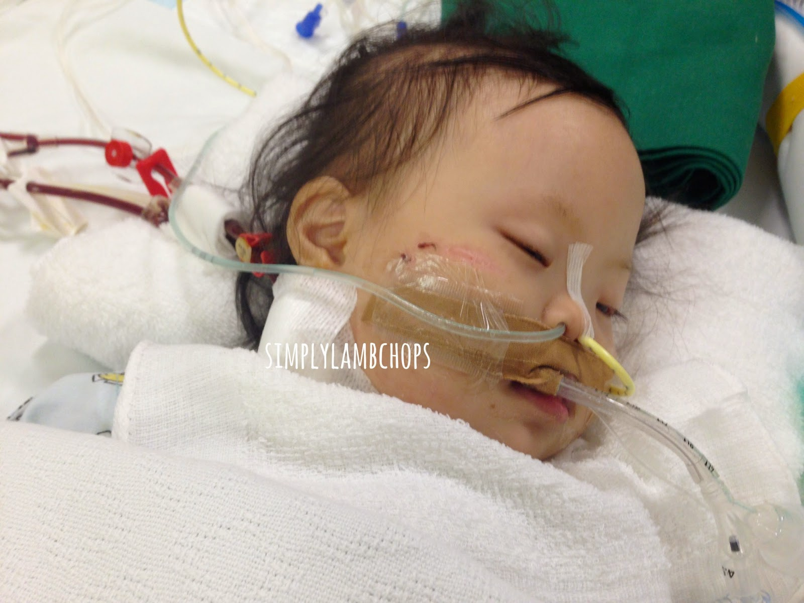 ECMO treatment for paediatrics in Singapore by Simply Lambchops