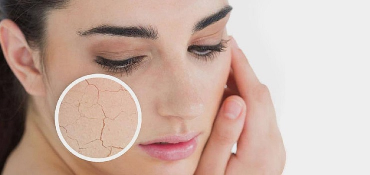 14 Ways To Overcome Dry Skin Naturally with Ease
