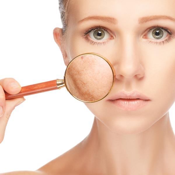 Manchas oscuras en la piel remedios caseros tratamiendo rapido