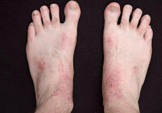 dermatitis on legs