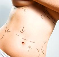 dieta dopo unoperazione di riduzione dello stomaco