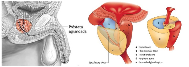 El aumento del tejido central de la próstata causa