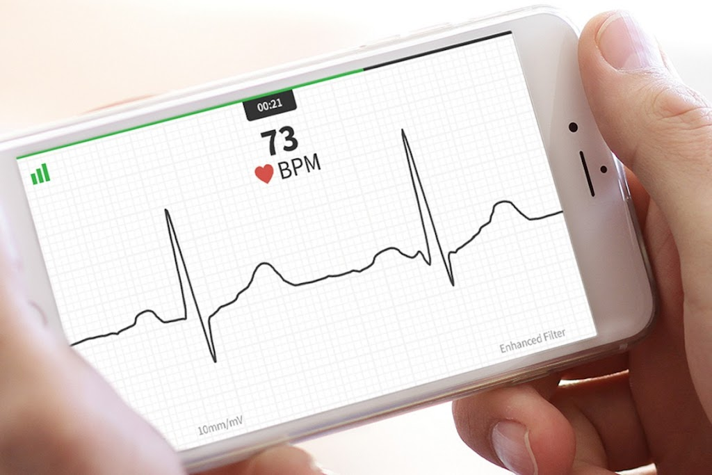 AliverCor 行動 ECG 讓你輕鬆「關心」|數位時代