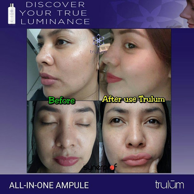 Jual Trulum Serum Anti Aging Di Sarinagen