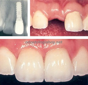 implante dental diente adelante