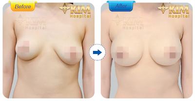 Hình ảnh khách hàng sau khi thực hiện nâng ngực chảy xệ tại KIM Hospital