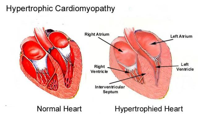 Υπερτροφική Μυοκαρδιοπάθεια (HCM)