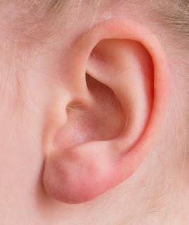Telinga Berdengung Tanda Orang Membicarakan Kita, Betulkah ?