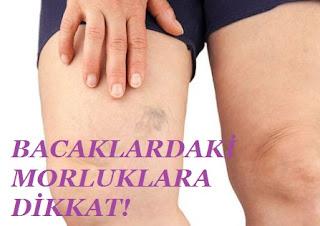 Bacaklarda Morarma Neyin Belirtisidir?