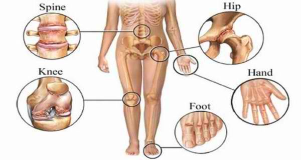 5 Powerful Home Remedies That Help You To Get Rid Of Joint Pain In A Matter Of Days