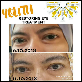 Testimoni Youth Shaklee Restoring Eye Treatment