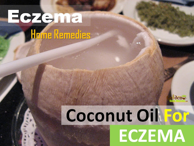 Coconut Oil for Eczema, Coconut Oil and Eczema, How To Get Rid Of Eczema, Home Remedies For Eczema, How To Use Coconut Oil for Eczema, Is Coconut Oil Good For Eczema, Eczema Treatment,