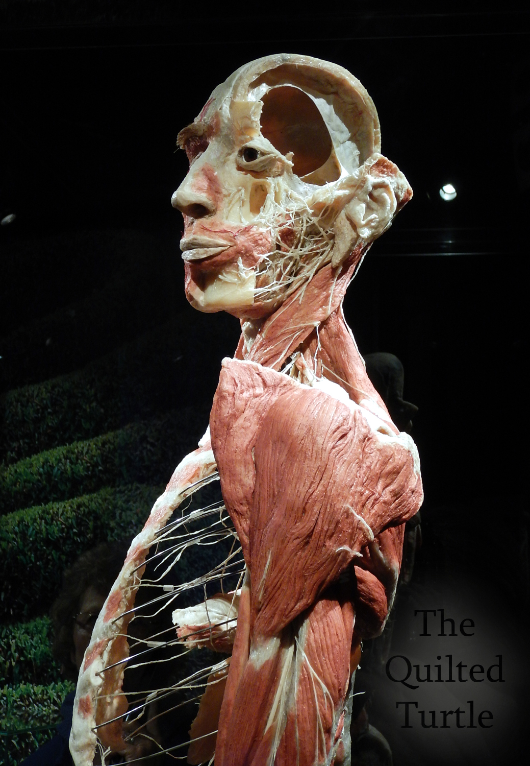 The Quilted Turtle: Body Worlds Amsterdam