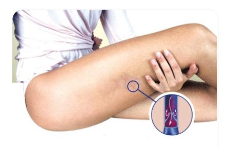 Se estira para aliviar el dolor en la parte inferior de la pierna