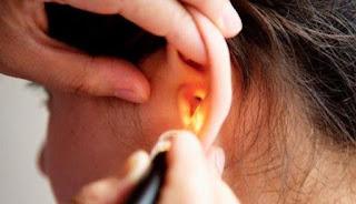 Obat Infeksi Telinga atau Congek Alami