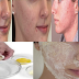 5 Effective Home Remedies That Can Help Eliminate Pimples Naturally
