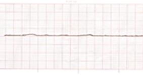 Gambaran Asistol Pada EKG Dan Cara Penanganan Penderita
