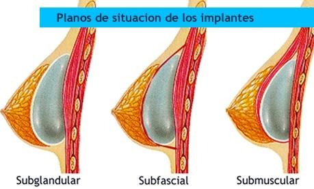 Cirugía Plástica Reparadora y Estética: agosto 2013