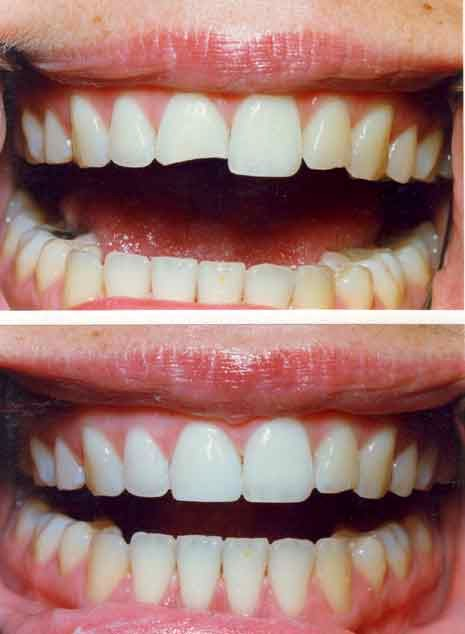 The Right Smile Center Dentist Sandy Springs How much doVeneers Cost Per Tooth