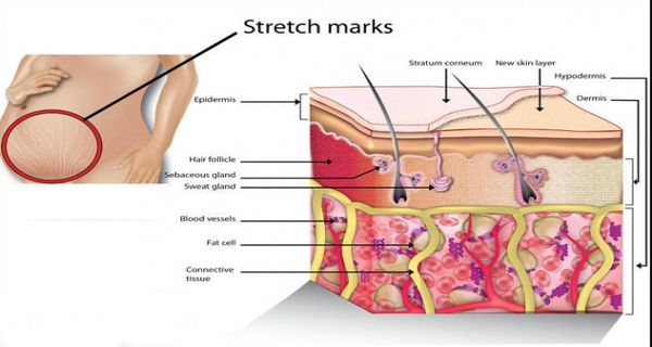 Stretch Marks as a Major Problem and Natural Ways of Reducing Their Appearance