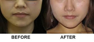 Lose Weight In Face