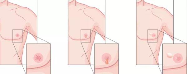 Kanker payudara pria