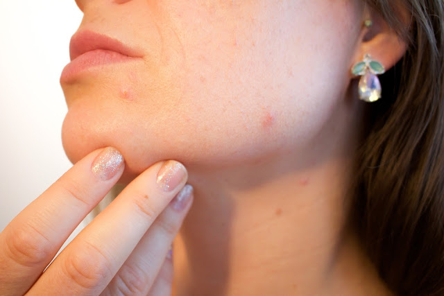 How To Reduce Pimples And Dark Spots Naturally