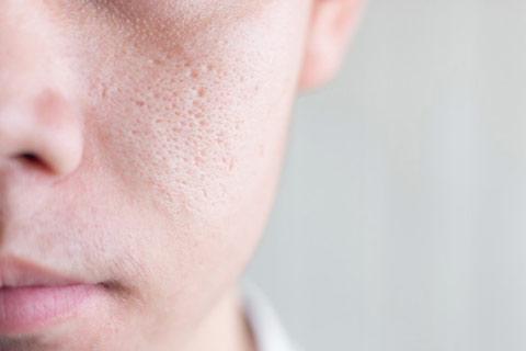 manfaat bengkoang untuk mengecilkan pori-pori wajah