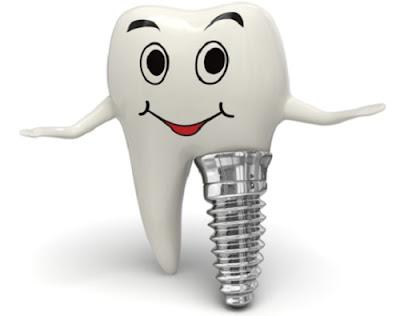 tư vấn cấy ghép răng implant -2