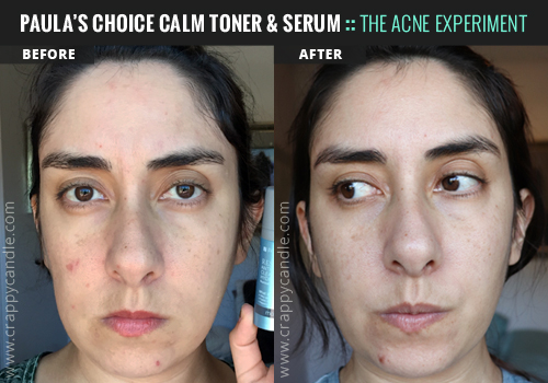 Paula's Choice CALM Serum & Toner Before & After - The Acne Experiment