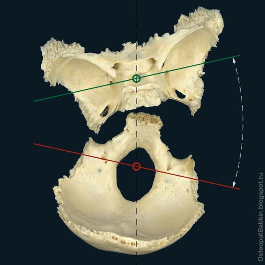 однонаправленный наклон по оси назион-опистион в сторону открытого угла