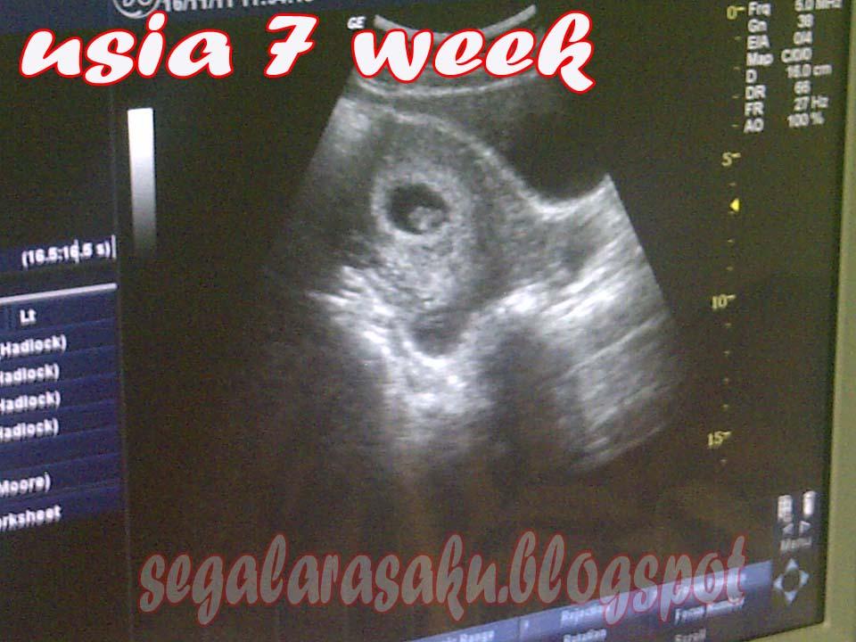 Mydiary Usg Kehamilan 7w 11w 16w