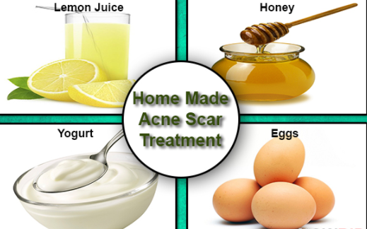 Homemade Acne Treatment That Works Fast