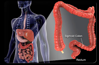 Colon Cancer Survival Rates
