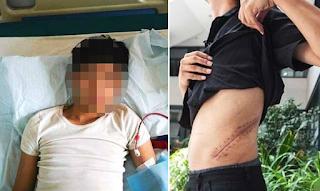 Έφηβος πούλησε το νεφρό του για να αγοράσει iPhone και τώρα έμεινε κατάκοιτος με νεφρική ανεπάρκεια